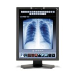 "21.3"" 10-bit Color 3-Megapixel Medical Diagnostic Display with LED Backlighting - FDA 510(k) Approved"